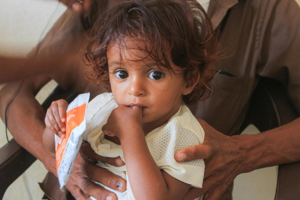Photo: WFP/Issa Al-Raghi, Child at a WFP supported nutrition clinic in Hajjah City, Yemen