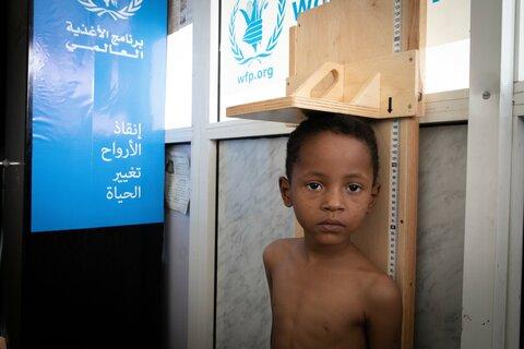 紛争6年目のイエメン~国連WFPの栄養支援で回復したアダームくん